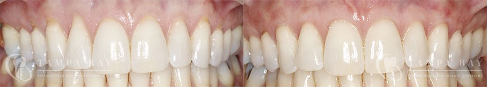 Acellular Dermal Martic (Maxilla) Before & After Patient 1-1