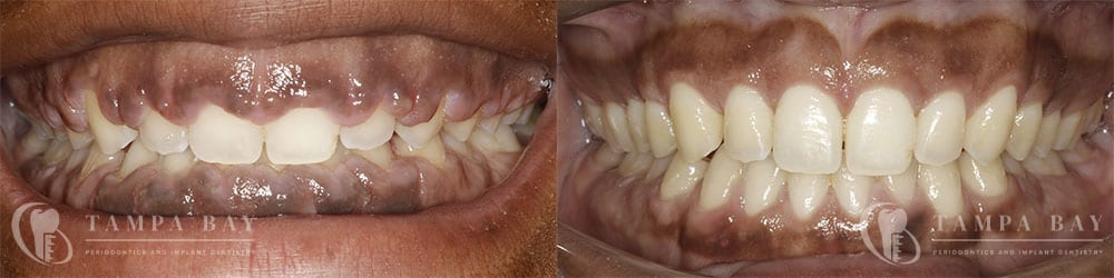 Non-Restorative Crown Lengthening Before & After Patient 1-1