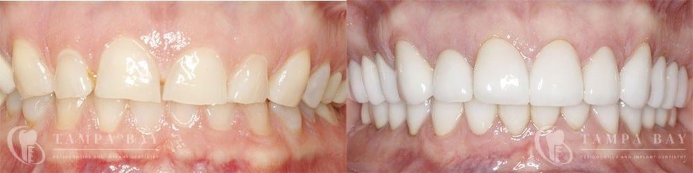 Restorative Crown Lengthening Before & After Patient 1-1