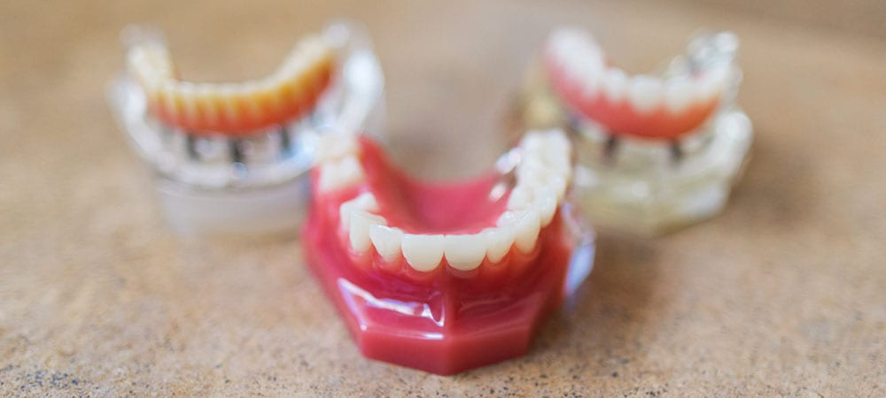 Three 3D teeth models