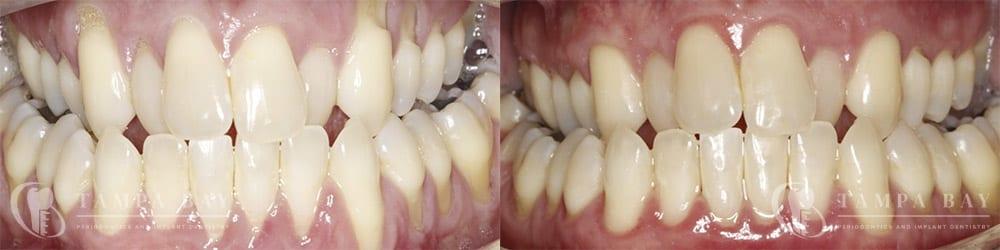 tampa-periodontics-adm-full-mouth-patient-1-1