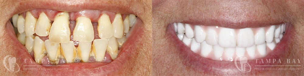 tampa-periodontics-full-arch-implants-patient-1-1