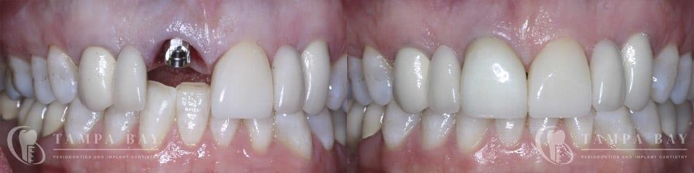 tampa-periodontics-immediate-implant-provisional-patient-1-1