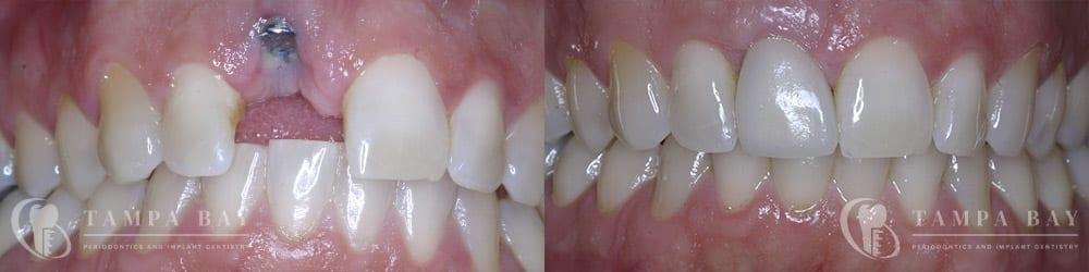 tampa-periodontics-malpositioned-implant-repair-patient-1-1