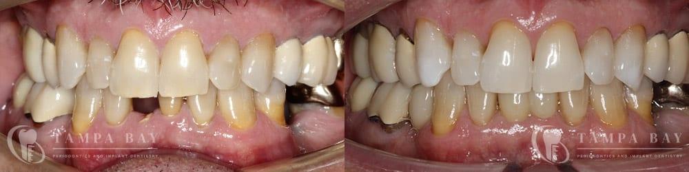 tampa-periodontics-single-anterior-implant-patient-1-1