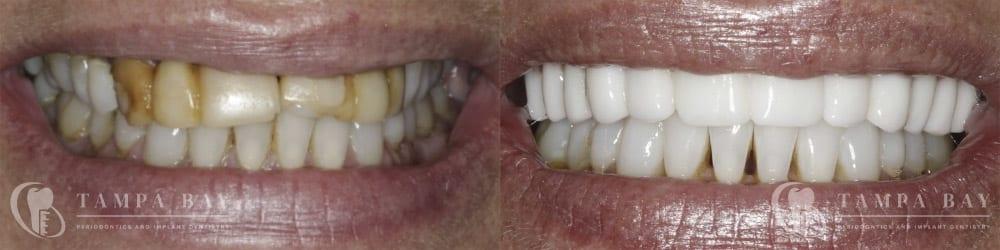 tampa-periodontics-upper-implants-patient-1-1
